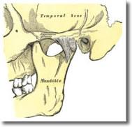 implantat6